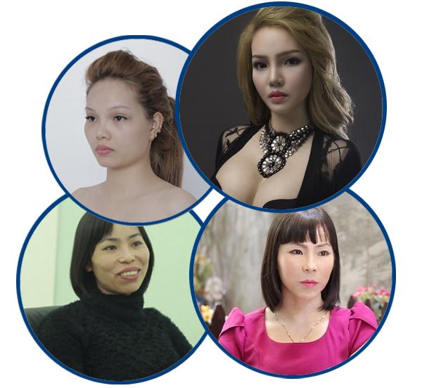 Làm thế nào để nhận ưu đãi TẶNG 10 TRIỆU chỉnh hình khuôn mặt? 4