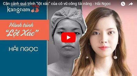 Ca phẫu thuật gọt mặt chuẩn V- line của vũ công Nguyễn Hải Ngọc