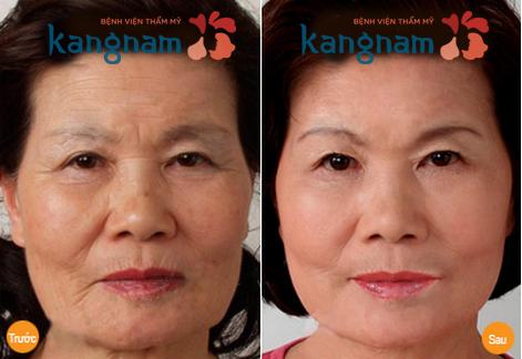 tham-my-lam-day-khuon-mat-voi-cay-mo-nguyen-bao-205-copy copy