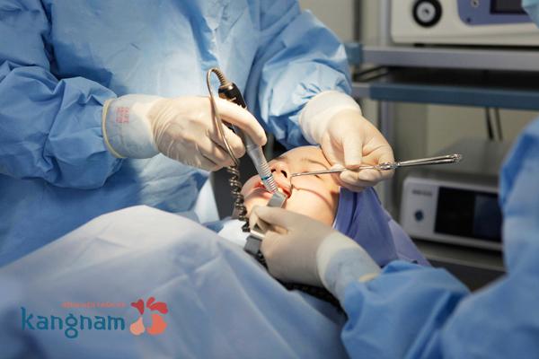 Bác sĩ tiến hành phẫu thuật gọt mặt nội soi công nghệ 3D