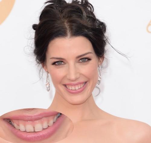 Phẫu thuật chữa cười hở lợi có nguy hiểm không