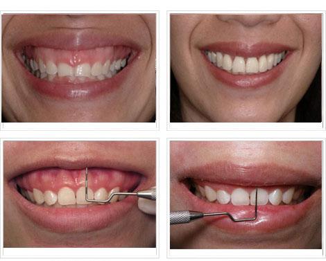 Trước và sau khi phẫu thuật chữa cười hở lợi