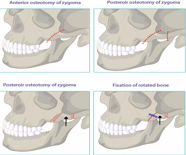 Mô hình phẫu thuật hạ gò má tại Kangnam