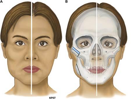 Phẫu thuật hạ gò má có an toàn không là quan tâm của nhiều chị em