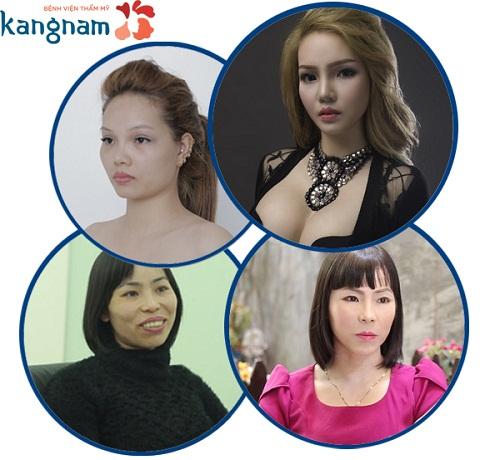 cung-chuyen-gia-nhan-dien-benh-vien-tham-my-chuan-han