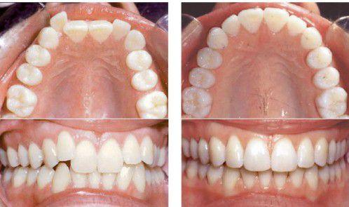 Niềng răng có tác hại gì 3