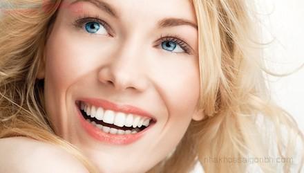 Niềng răng có tác hại gì
