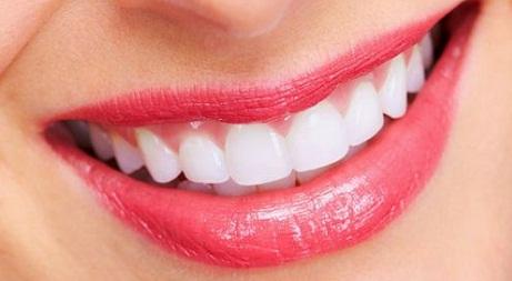 Niềng răng có tác hại gì 4
