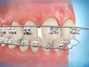 Niềng răng hô mất bao lâu?