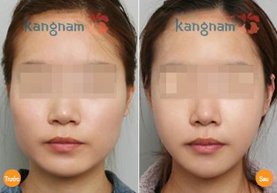 phau-thuat-got-cam-v-line-3d-cong-nghe-han-quoc66