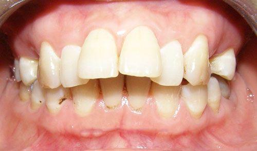Hình ảnh răng hô hàm trên