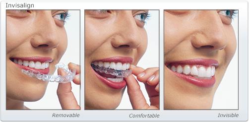 TOP 4 cách làm răng hết hô hiệu quả vượt trội 2017 1