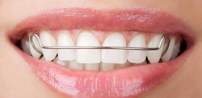 Niềng răng có tác dụng gì 2