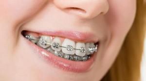 Niềng răng có làm thay đổi khuôn mặt không?