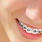Chi phí chữa răng vẩu hết bao nhiêu tiền?
