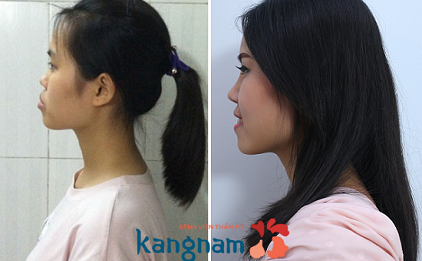 Tự tin hơn sau chỉnh hàm hô móm tại Kangnam