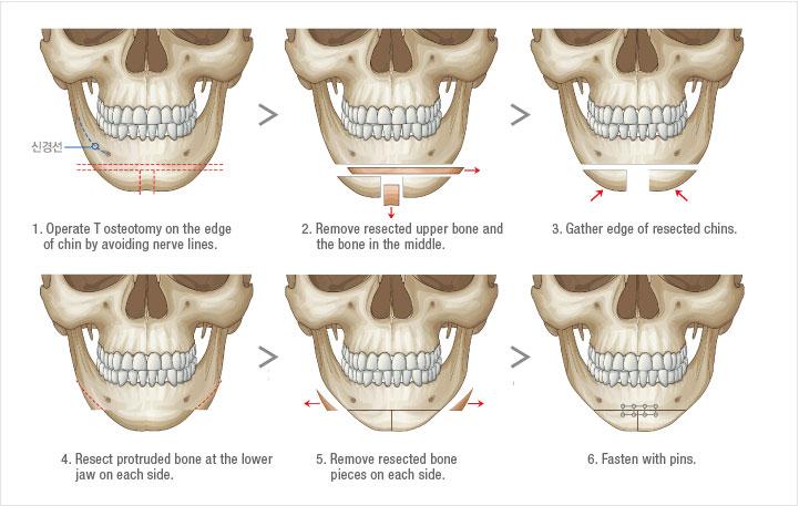 Mô hình phẫu thuật thẩm mỹ khuôn mặt cho nam giới