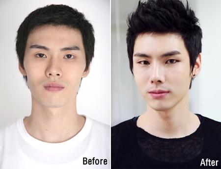 Cuốn hút hơn nhờ công nghệ phẫu thuật thẩm mỹ khuôn mặt cho nam giới