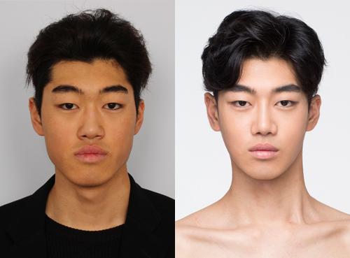 Khuôn mặt điển trai hơn nhờ phẫu thuật thẩm mỹ khuôn mặt cho nam giới