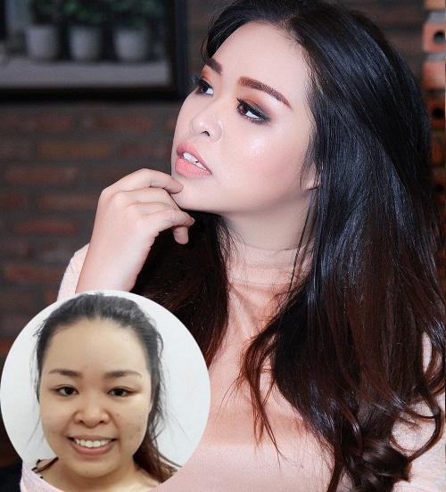 Bất ngờ với kết quả thẩm mỹ khuôn mặt V line tại Kangnam