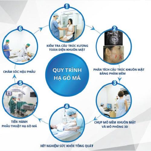 Quy trình phẫu thuật hạ gò má tại Kangnam