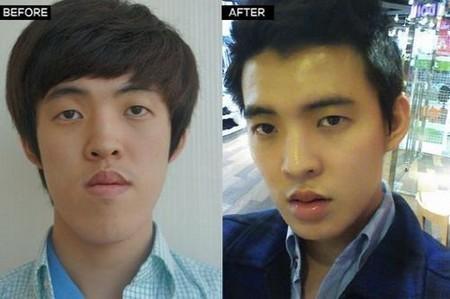 Đàn ông phẫu thuật thẩm mỹ là trào lưu khá hot tại Hàn