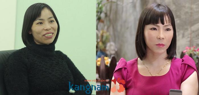 Chị Thu Huyền chia sẻ về kết quả phẫu thuật gọt cằm Hàn Quốc