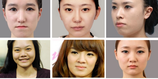 Ai nên lựa chọn phẫu thuật gọt mặt để thay đổi cuộc sống?
