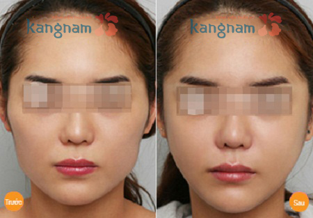 Kết quả thẩm mỹ gọt cằm V line 3D tại Kangnam