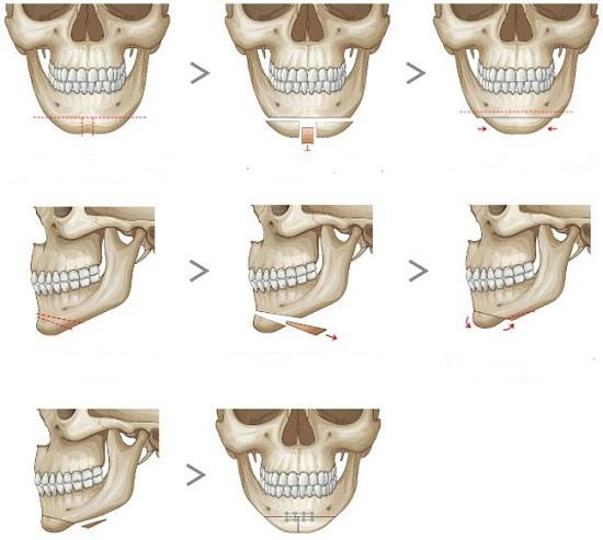 Mô hình giải đáp phẫu thuật trượt cằm là gì?