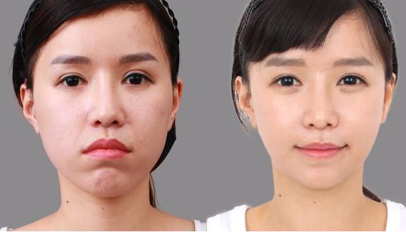 Gương mặt xinh đẹp hơn nhờ kĩ thuật chỉnh hàm hô móm