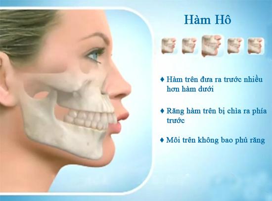 Phẫu thuật chỉnh hàm hô móm giúp lấy lại nụ cười duyên xinh