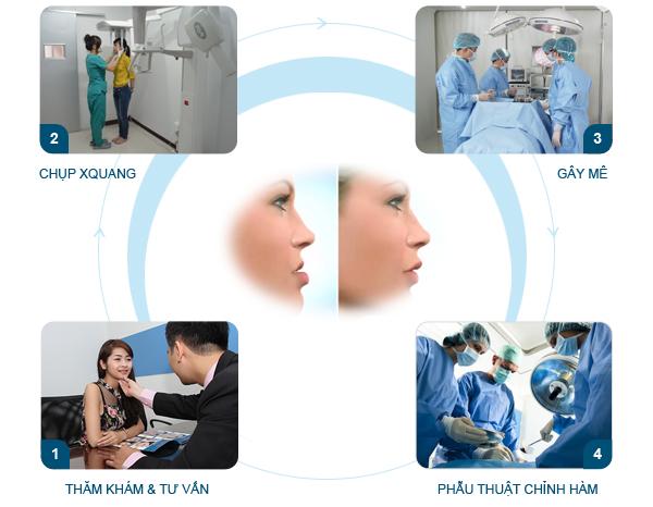 Mô hình phẫu thuật chỉnh hàm hô móm tại Kangnam
