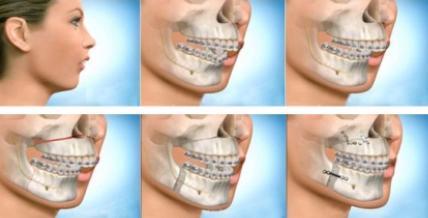 Mô hình phẫu thuật chỉnh xương hàm tại Kangnam