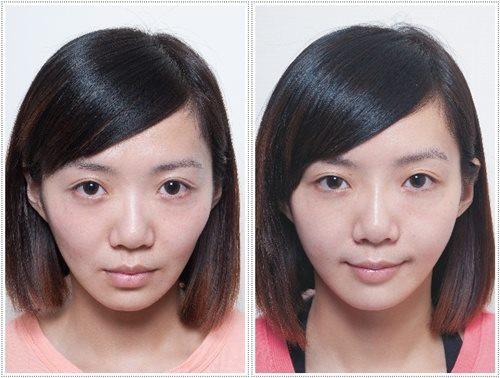 Nâng xương gò má giúp gương mặt đầy đằn hơn