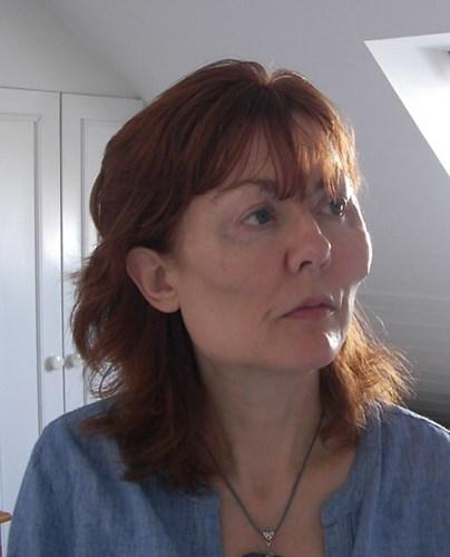 Hình ảnh chứng minh tiêm botox làm thon gọn mặt có hại không?