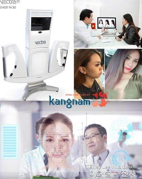 Quy trình gọt mặt V line 3D tại Kangnam