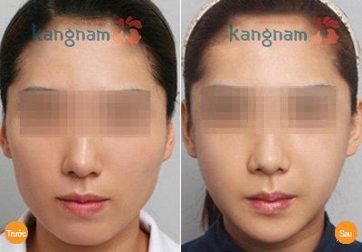 Kết quả gọt mặt V line 3D tại Kangnam