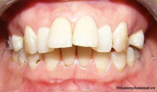 cách chữa răng hô