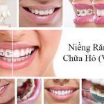 Chỉnh răng hô (vẩu) giá bao nhiêu tiền tại BVTM Kangnam?