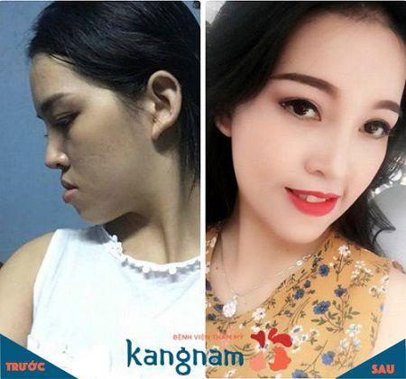 Kết quả chỉnh hàm hô tại BVTM Kangnam