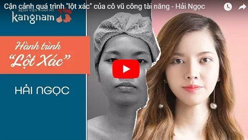 Video thực hiện gọt mặt của khách hàng Hải Ngọc (Hành trình lột xác)
