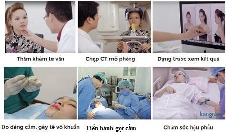 Quy trình phẫu thuật gọt cằm V line 3D tại Kangnam