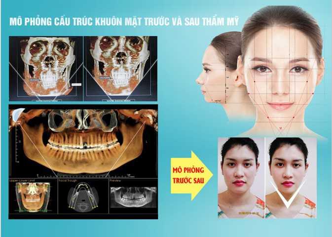 Thẩm mỹ khuôn mặt V line 3d 2