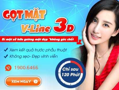 Thẩm mỹ khuôn mặt V line 3d 1