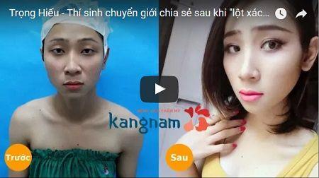 Trọng Hiếu - Thí sinh chuyển giới chia sẻ sau khi thực hiện gọt hàm tại Kangnam