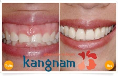 Kết quả phẫu thuật chữa cười hở lợi tại Kangnam