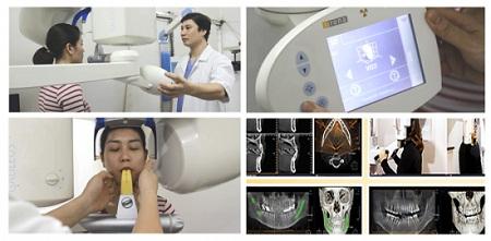 Toàn cảnh quá trình phẫu thuật chỉnh hình xương hàm hô móm