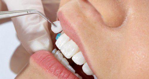 Mài răng là cách làm răng bớt hô hiệu quả nhất
