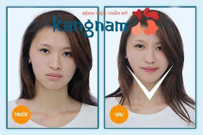 Khách hàng Kangnam tự tin chia sẻ độn cằm bao nhiêu tiền